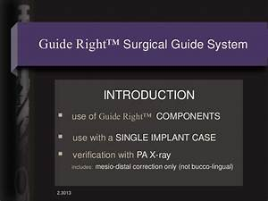 1 Introduction To Guide Right Components Single Implant