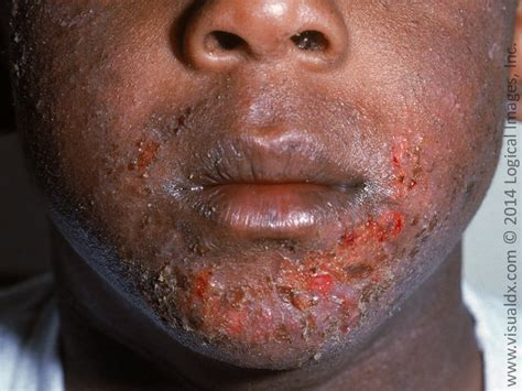 honey colored crusted lesion learnderm crust