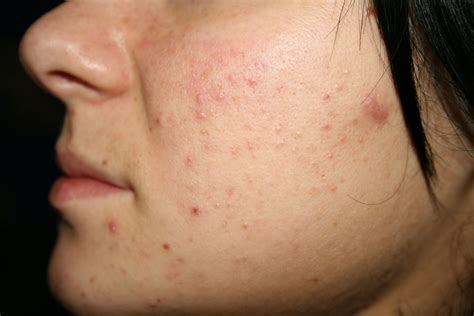 78 black spots on national helps acne