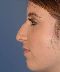 Rhinoplasty For Hump  U0026 Poorly Projected Nasal Tip