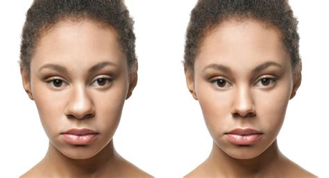 tricks    nose  thinner  surgery read health related blogs