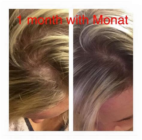Dean-Larra's before and after with Monat! Contact me for a