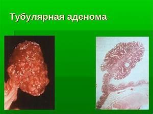 Синтомицин от простатита