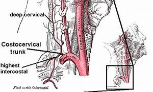 Costocervical trunk - Wikipedia