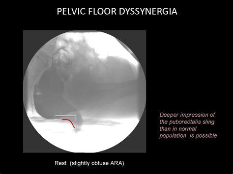 pelvic floor dyssynergia types ecr 2012 c 0796 posterior pelvic floor disorders