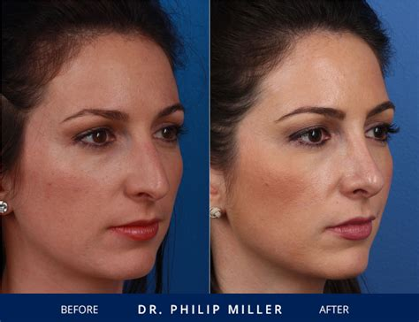 Nose Job Gallery Of Nyc Patients  Before & After Photos