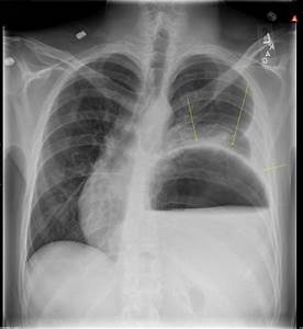 Gastric Volvulus  An Easily Missed Diagnosis Of Chest Pain