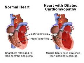 Dilated Cardiomyopathy on Pinterest - Hypertrophic Cardiomyopathy ...  Dilated cardiomyopathy Cardiomyopathy