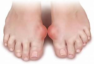 Polyarticular arthritis