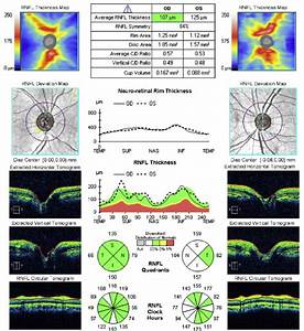Optical Coherence Tomography Of The Retinal Nerve Fiber