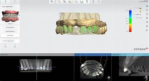 Guided Surgery  Cad