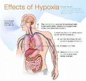 Hypercapnia  U0026 Hypoxia