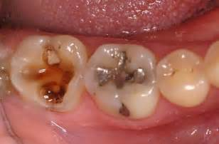 tooth cavity home remedies for tooth decay and cavities