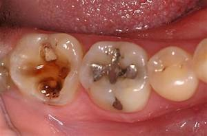Image Gallery tooth cavity