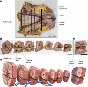 Panel A Shows A Photograph Of Female Cadaveric Pelvic