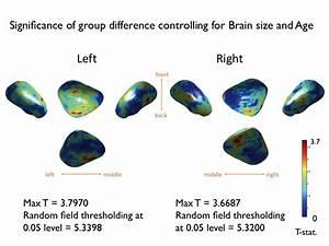 amygdala coloring pages