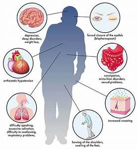 Parkinson's disease : Study estimates 1 in 2 women and 1 ...