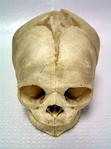 Re  Possible Discovery Of Ancient Mother And Baby With Elongated Heads In Bolivia