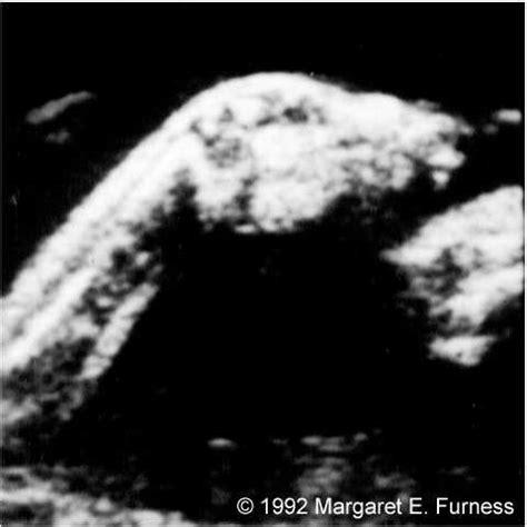 Figure 8: Normal dorsiflexion, 36 weeks, sagittal view.