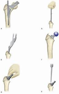 Артроз тазобедренных суставов лечение препараты