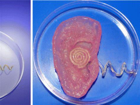 une oreille bionique fabriqu 233 e avec une imprimante sciencesetavenir fr