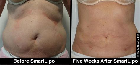 smartlipo results    state vein
