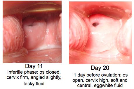 what color is your blood before it hits the air day 11 infertile phase os closed cervix firm angled