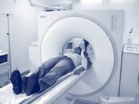 what is cat scan can scans cause cancer dr michael lauer says yes