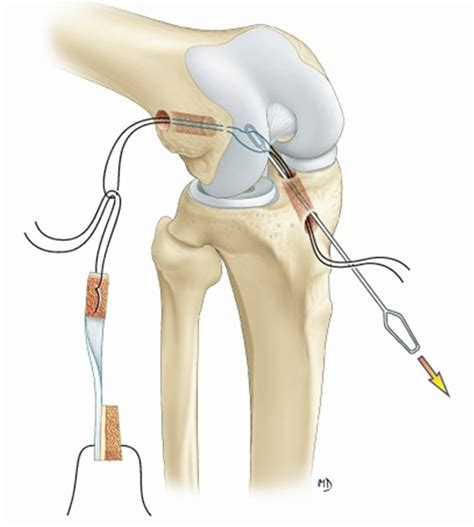la rupture du ligament crois 233 ant 233 rieur du genou