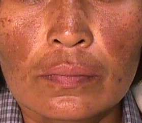 melasma causes symptoms treatment melasma