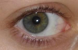 sectoral heterochromia iridis? by pesh527 on DeviantArt