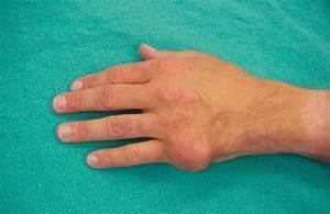 Лечение народными средствами артроза большого пальца руки