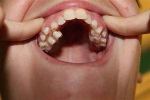 Another row of teeth | Dental Oddities | Pinterest | Teeth ...