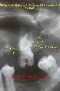 Closure Of A Mouth