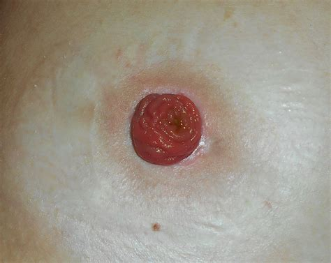 ileostomy wikipedia