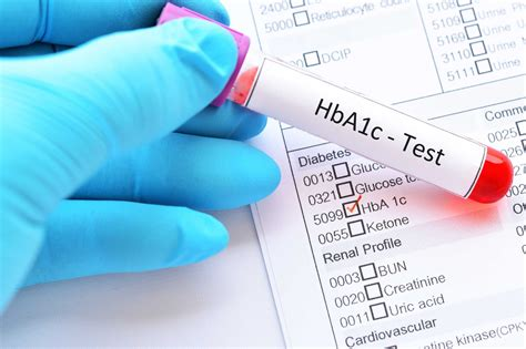hbac test  diabetes diagnosis target hbac home tests