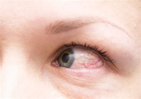 9 Causes Of Red Eyes