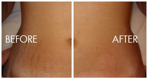 Stretch Marks And How To Treat Them - Style Motivation