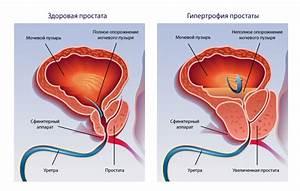 Таргетного препарата для лечения рака простаты