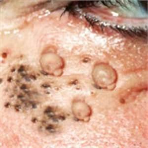 Trypophobia Pictures – Pop Pimples