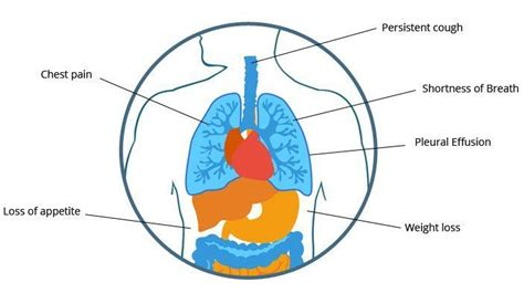 mesothelioma     symptoms prognosis