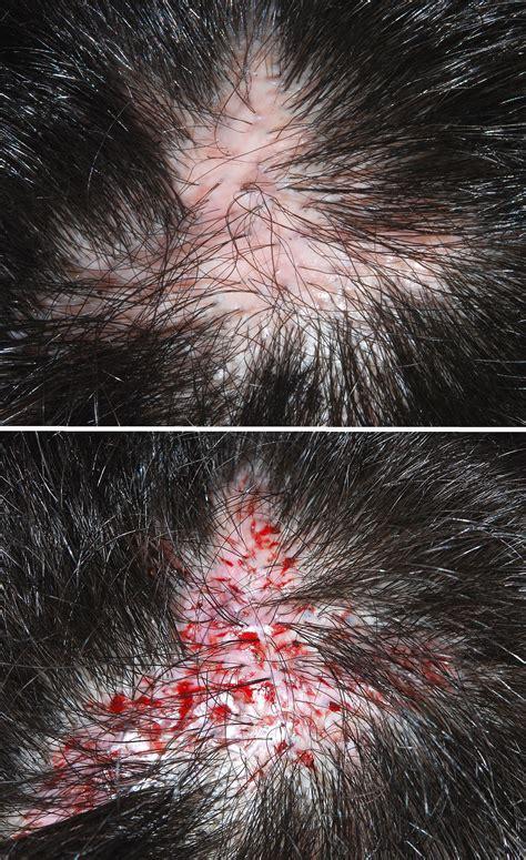 Hair transplantation - Wikipedia