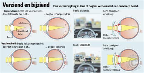 verschil sterkte lenzen en bril