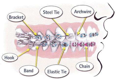 Tooth Movement Diagram by Braces Diagram Clearview Orthodontics Braces Invisalign
