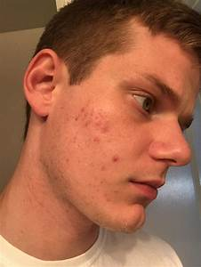 Would You Say This Is Mild  Moderate  Severe Acne    Acne