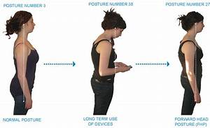 Image Gallery Neck Posture
