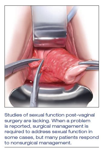 Assessing and treating sexual function after vaginal ...