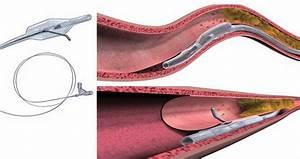 Stingray Catheter  Upper Panel