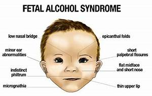 Fetal Alcohol Syndrome | Plano Children's Medical Clinic