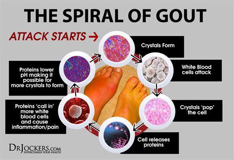 beat gout naturally drjockerscom